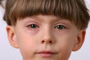 Allergic Reaction (Custom)